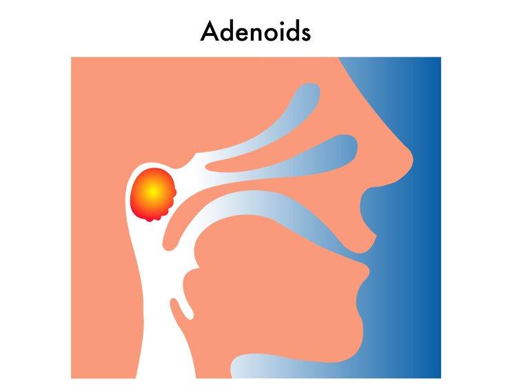 Adenoid Removal Austin