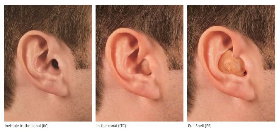 Custom ITE style hearing aids