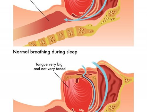 Is This Snoring or Obstructive Sleep Apnea?