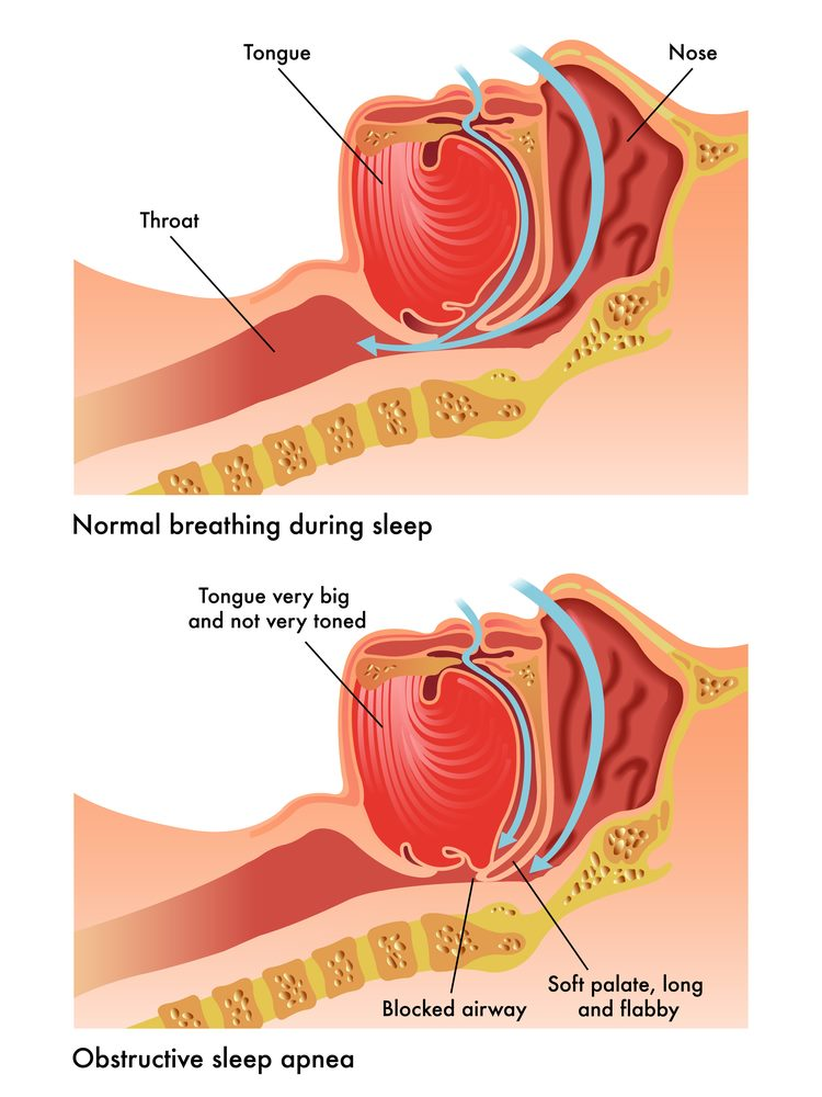 Obstructive Sleep Apnea Austin, TX